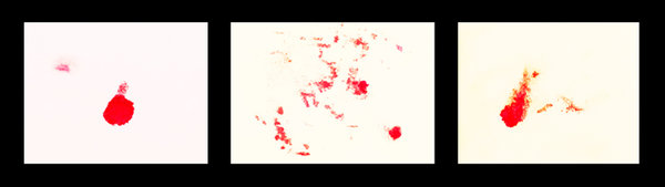 BlutbildTryptichonCLL60MacENDVERSIONKLEIN.jpg